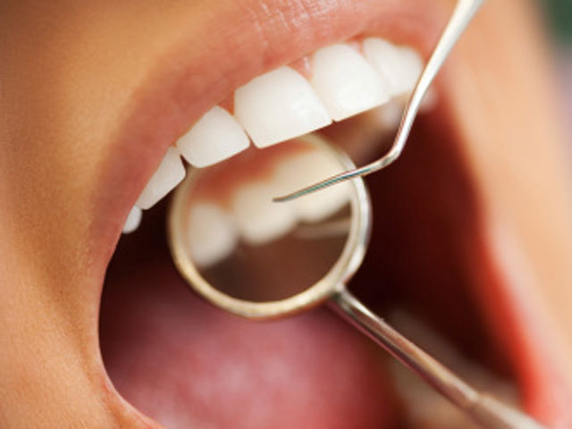 Do you have dental care and not know it?