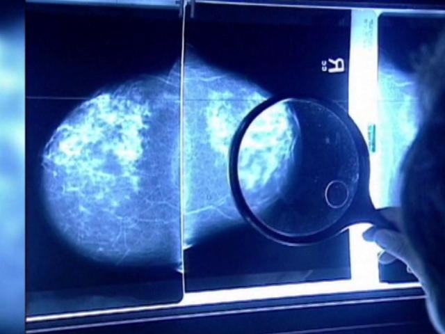 Suspicious Mammogram Result: Now What? - WebMD
