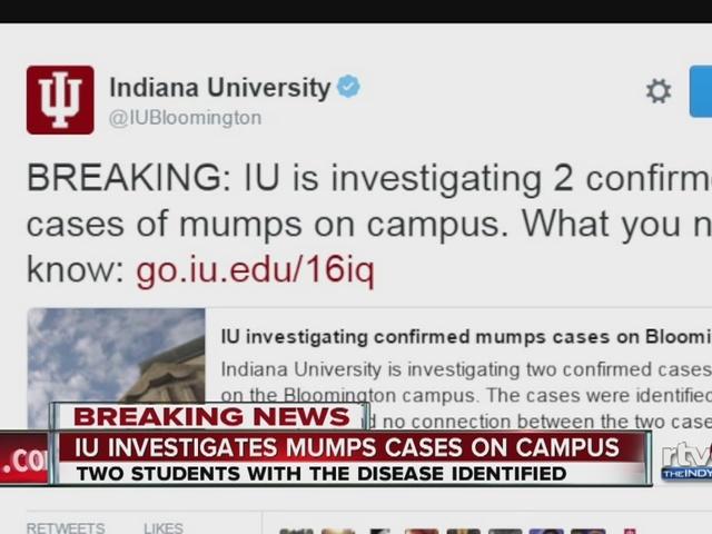 Mumps cases confirmed at IU Bloomington
