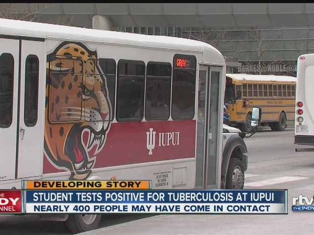 IUPUI confirms a student tested positive for tuberculosis
