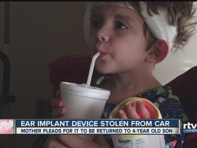 Child's ear implant device stolen from car