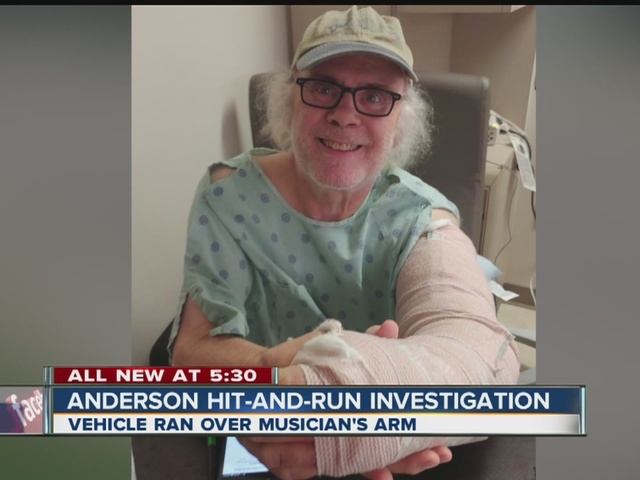 Anderson police investigating hit-and-run