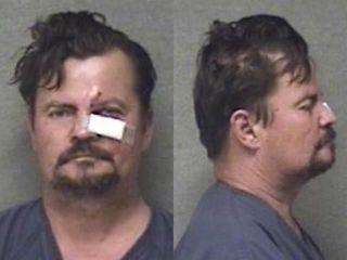 Muncie PD: Man bites, swallows ear during fight