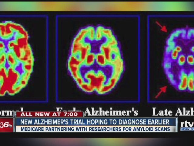 New Alzheimer's trial hoping to diagnose earlier