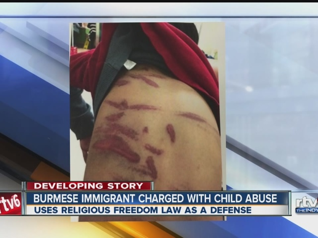 Burmese woman beats child, says RFRA is the reason