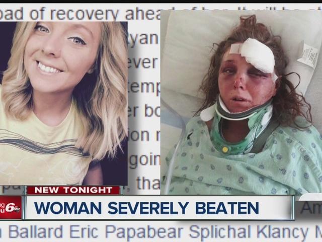 Woman severely beaten, ex-boyfriend charged