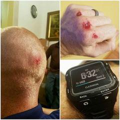 Man helps police, Garmin replaces damaged watch