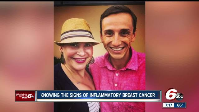Inflammatory breast cancer may not show up in routine mammograms