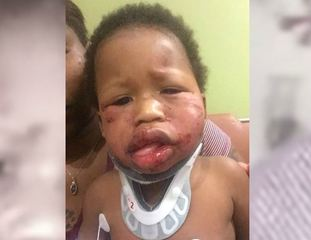 No charges filed in baby's injuries at day care