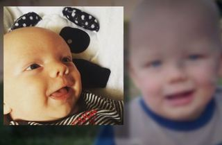 DCS report details toddler's previous injuries